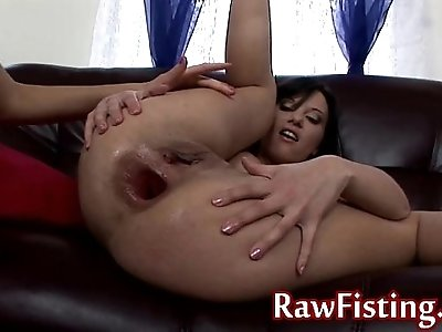 extreme anal babes